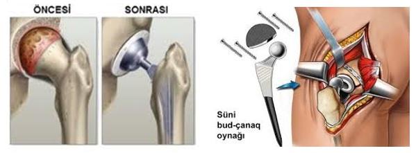 Total bud-çanaq endoprotezinin təsviri
