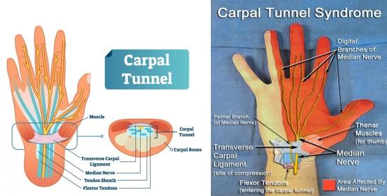 Karpal tunel sindromu haqqinda melumat