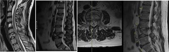 Boyun və bel fəqərə sınıqlarının sagittal və aksial MR görüntüləri