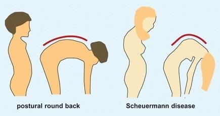 Scheuermann kifozlu onurğa