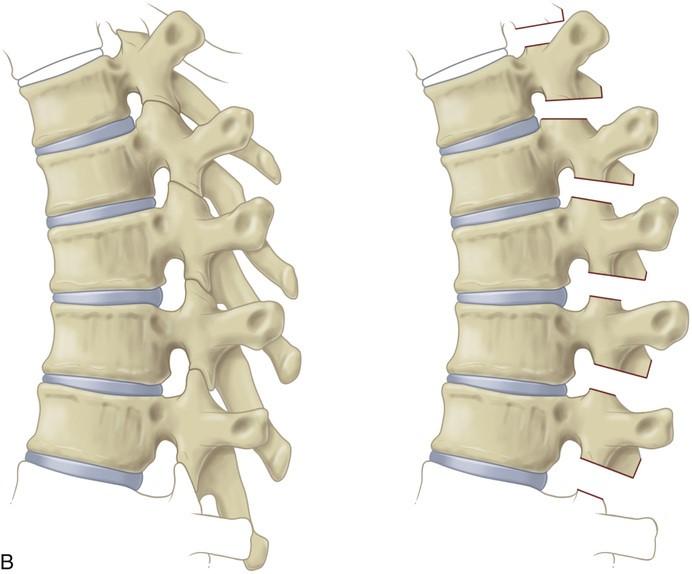 Ponte Osteotomiyası