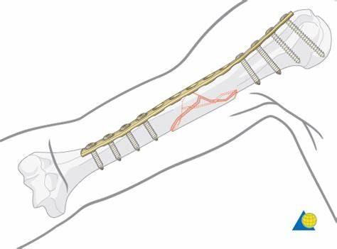 Bazu sümüyü cismi sınığının metal lovhə ilə osteosintezi