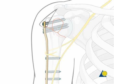 Bazu sümüyü başı sınığının metal lovhə ilə osteosintezi