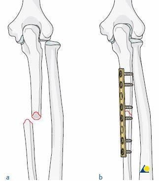 Dirsək sümüyü cismi sınığının metal lovhə ilə osteosintezi